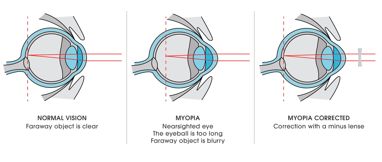 Myopia Optika Aralica